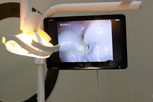 Intra Oral Camera